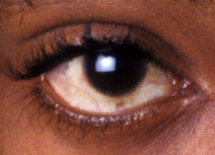 The eye of Tupac Shakur
